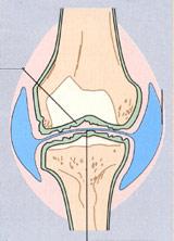 ledvæske i knæet