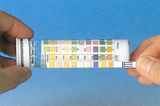 urinvejsinfektion test