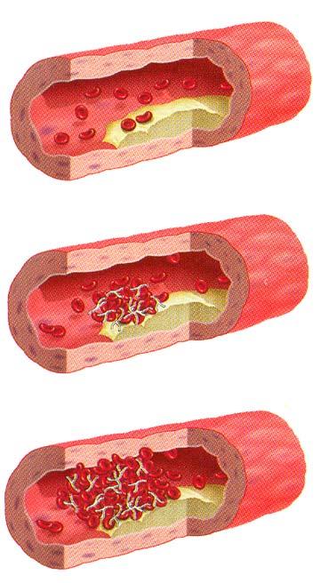 blodprop